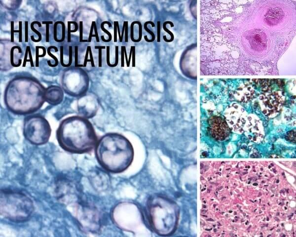Histoplasmosis Capsulatum
